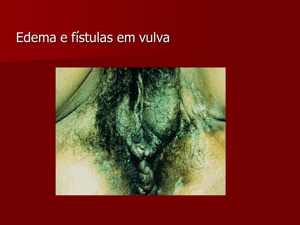 Edema e fístulas em vulva