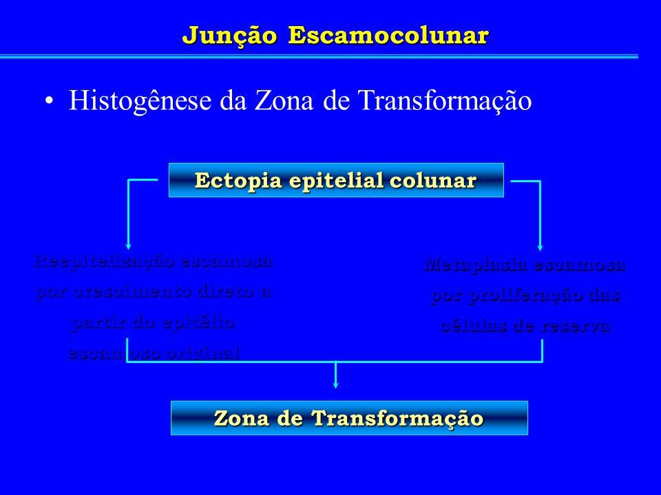 Ectopia epitelial colunar