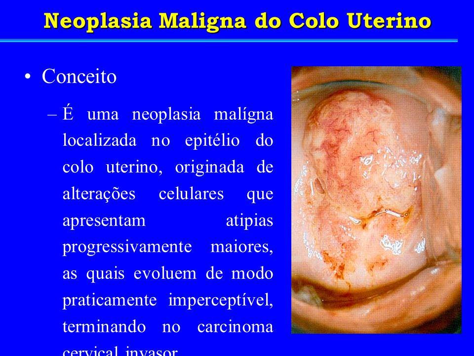 Neoplasia Maligna do Colo Uterino