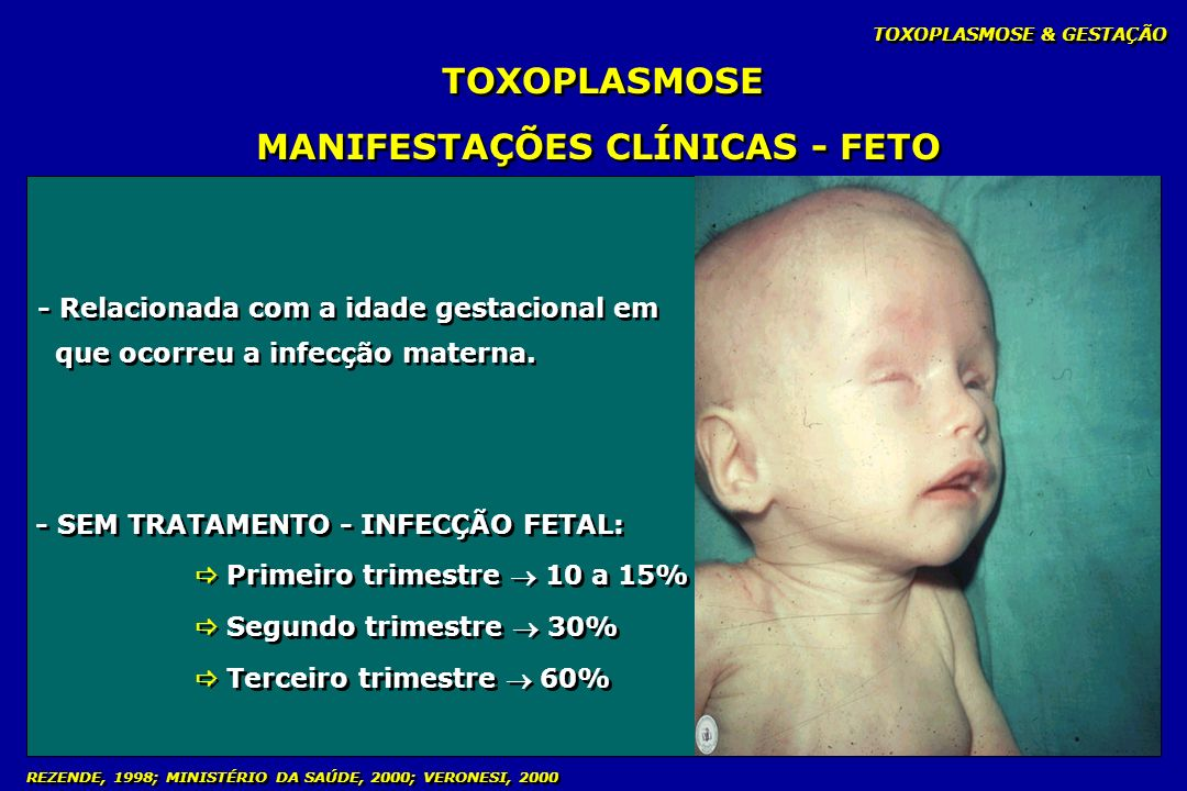 MANIFESTAÇÕES CLÍNICAS - FETO