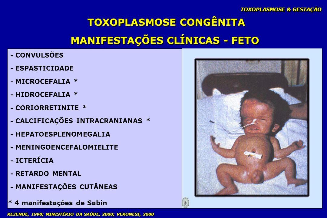 TOXOPLASMOSE CONGÊNITA MANIFESTAÇÕES CLÍNICAS - FETO