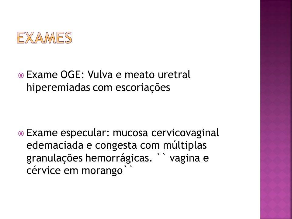 exames Exame OGE: Vulva e meato uretral hiperemiadas com escoriações