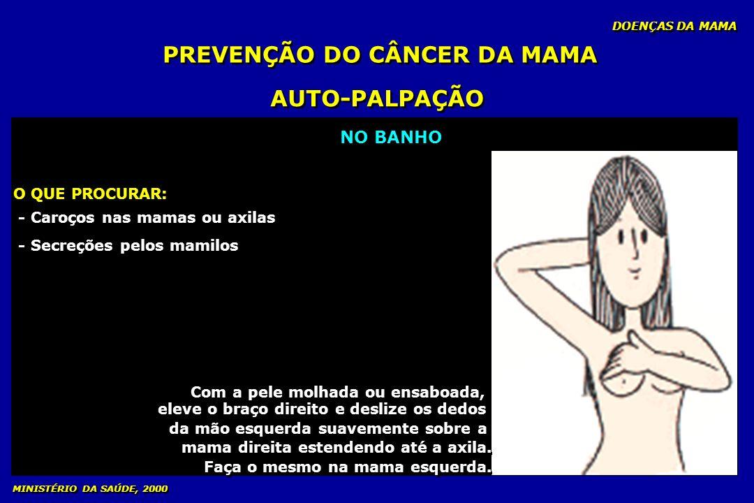 PREVENÇÃO DO CÂNCER DA MAMA