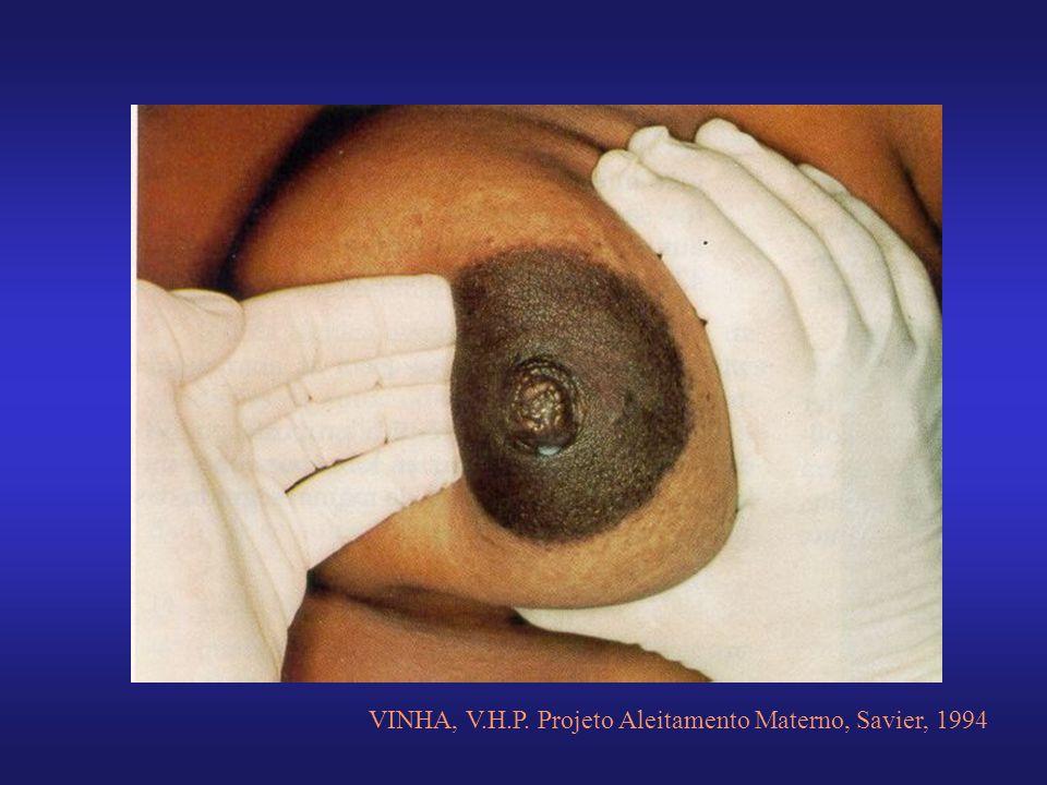 VINHA, V.H.P. Projeto Aleitamento Materno, Savier, 1994