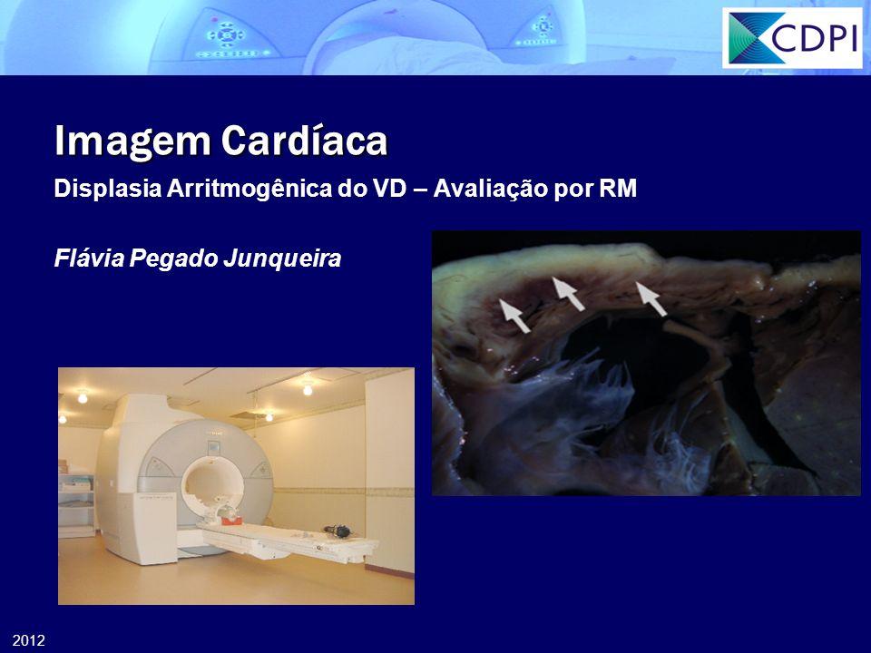 Imagem Cardíaca Displasia Arritmogênica do VD – Avaliação por RM