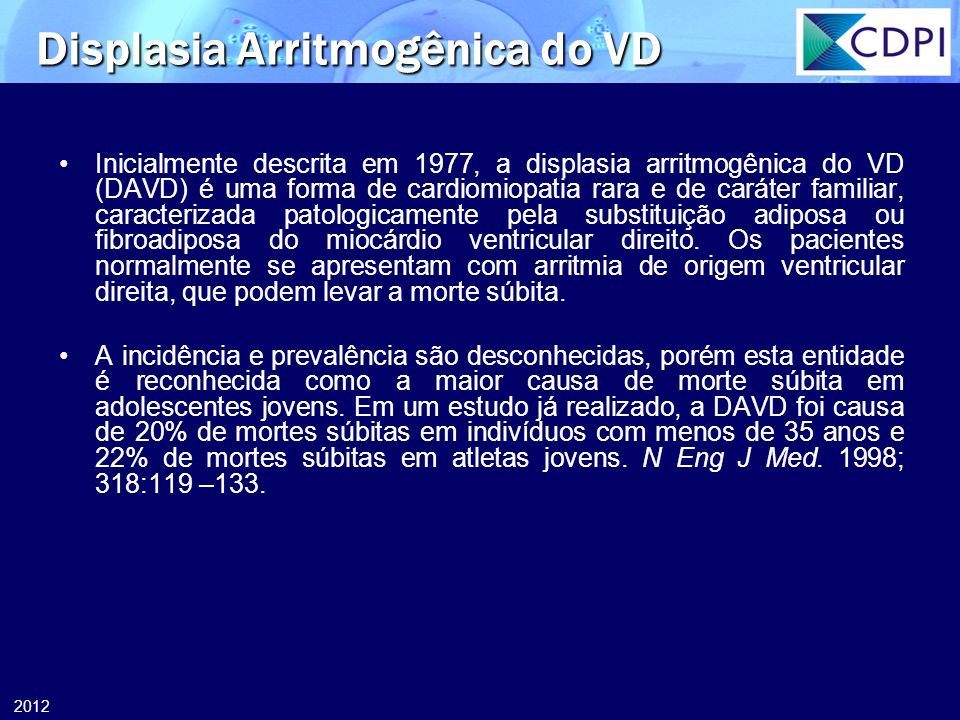 Displasia Arritmogênica do VD