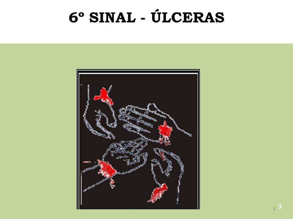 6º SINAL - ÚLCERAS 3