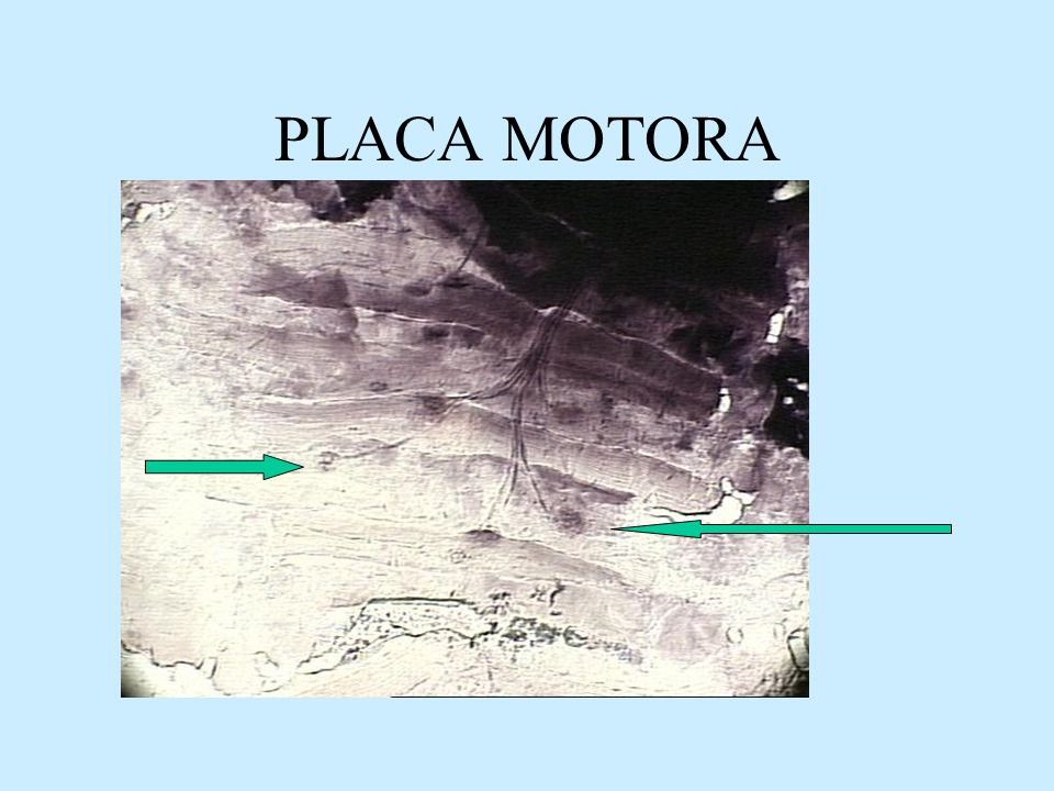 PLACA MOTORA