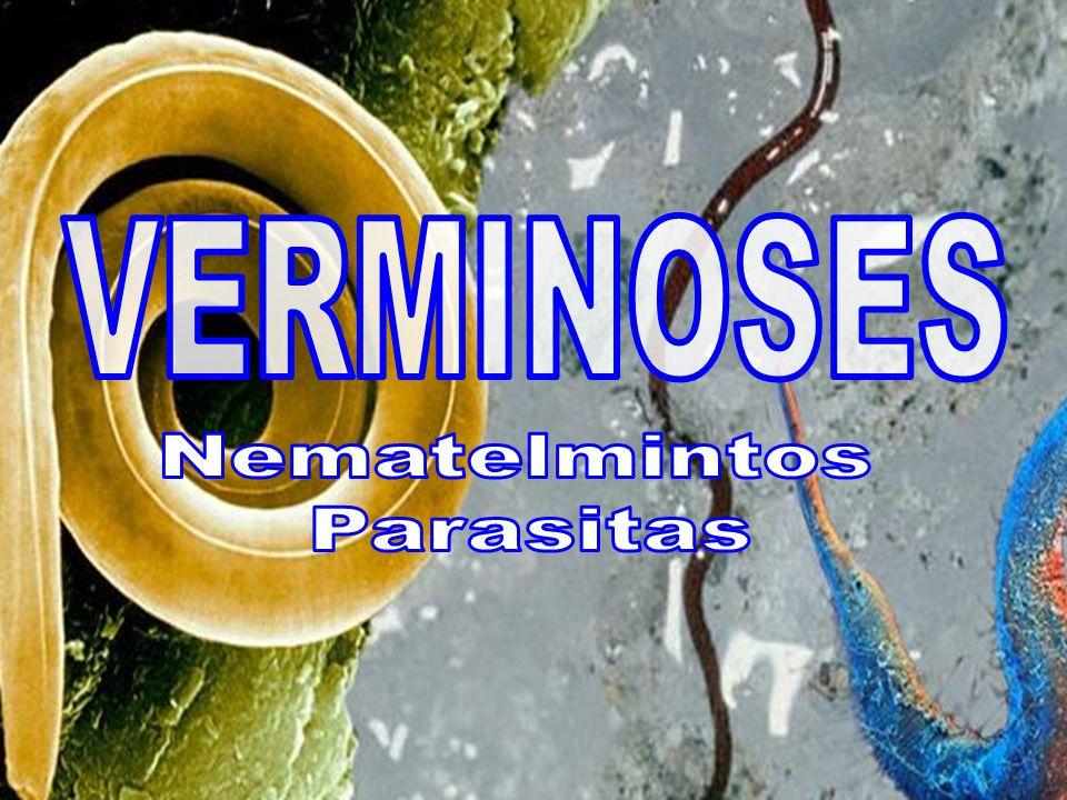 VERMINOSES Nematelmintos Parasitas