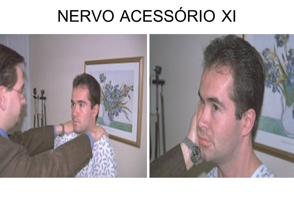 NERVO ACESSÓRIO XI