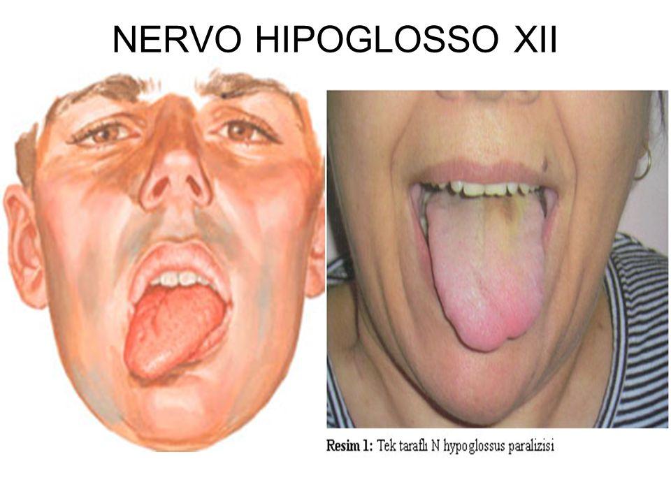 NERVO HIPOGLOSSO XII