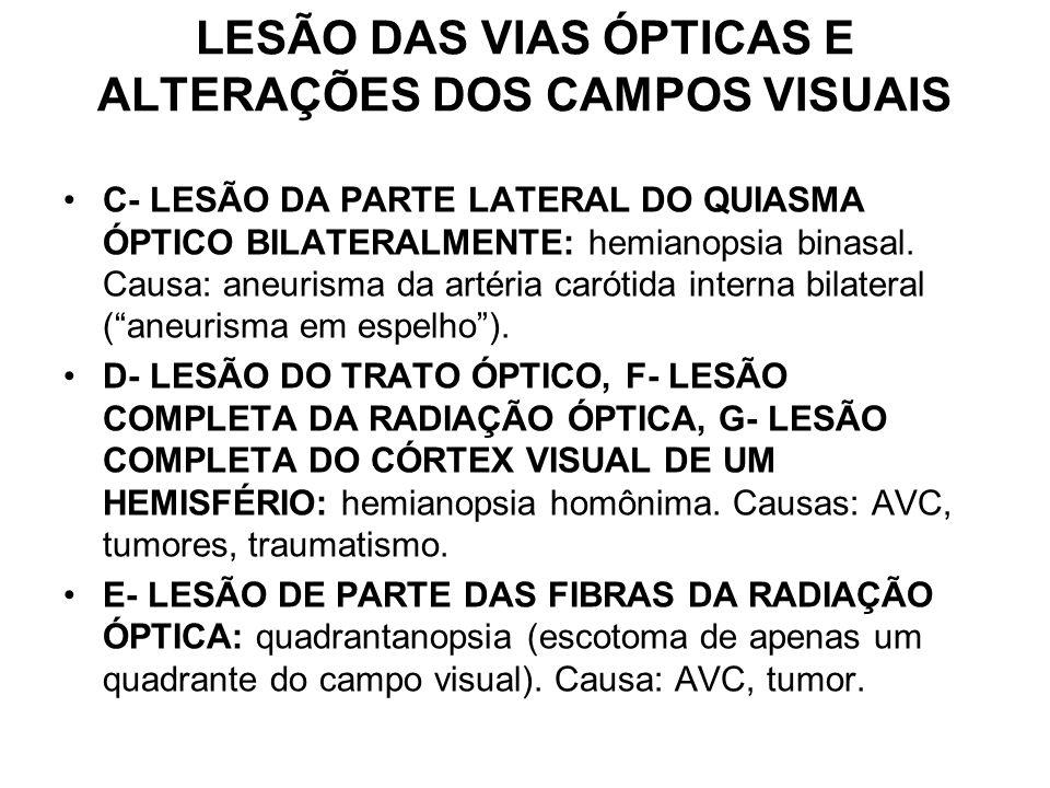 LESÃO DAS VIAS ÓPTICAS E ALTERAÇÕES DOS CAMPOS VISUAIS