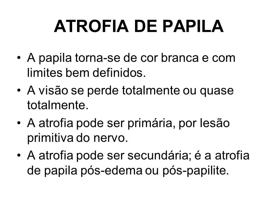 ATROFIA DE PAPILA A papila torna-se de cor branca e com limites bem definidos. A visão se perde totalmente ou quase totalmente.
