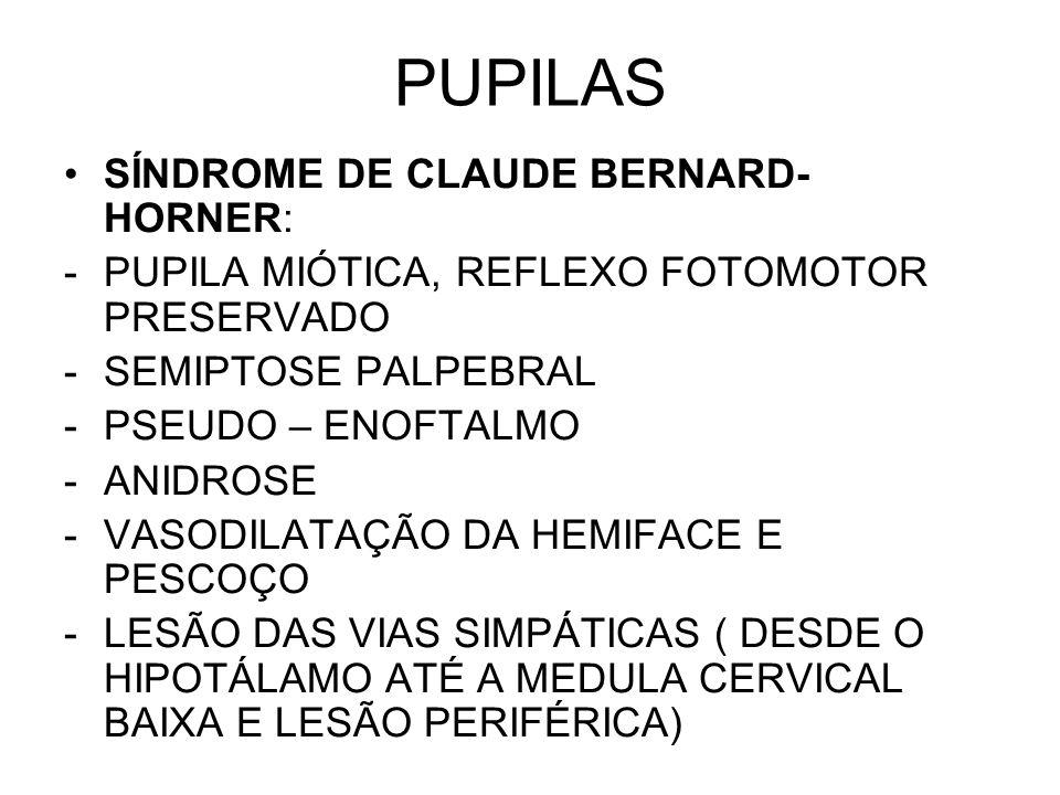 PUPILAS SÍNDROME DE CLAUDE BERNARD-HORNER: