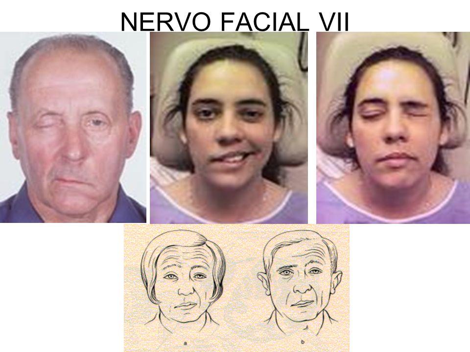 NERVO FACIAL VII
