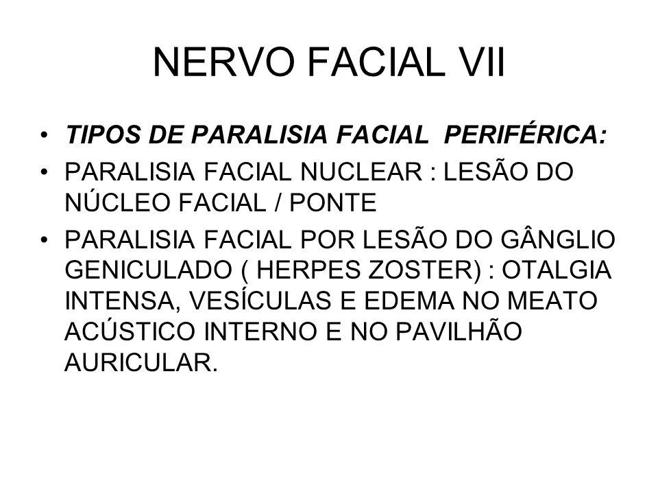 NERVO FACIAL VII TIPOS DE PARALISIA FACIAL PERIFÉRICA: