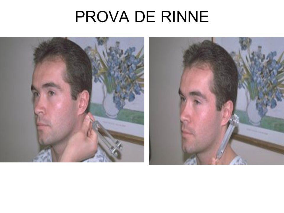 PROVA DE RINNE