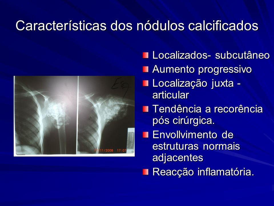 Características dos nódulos calcificados