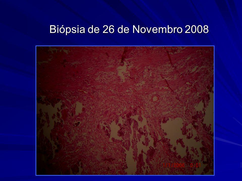 Biópsia de 26 de Novembro 2008