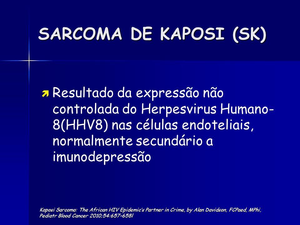 SARCOMA DE KAPOSI (SK)