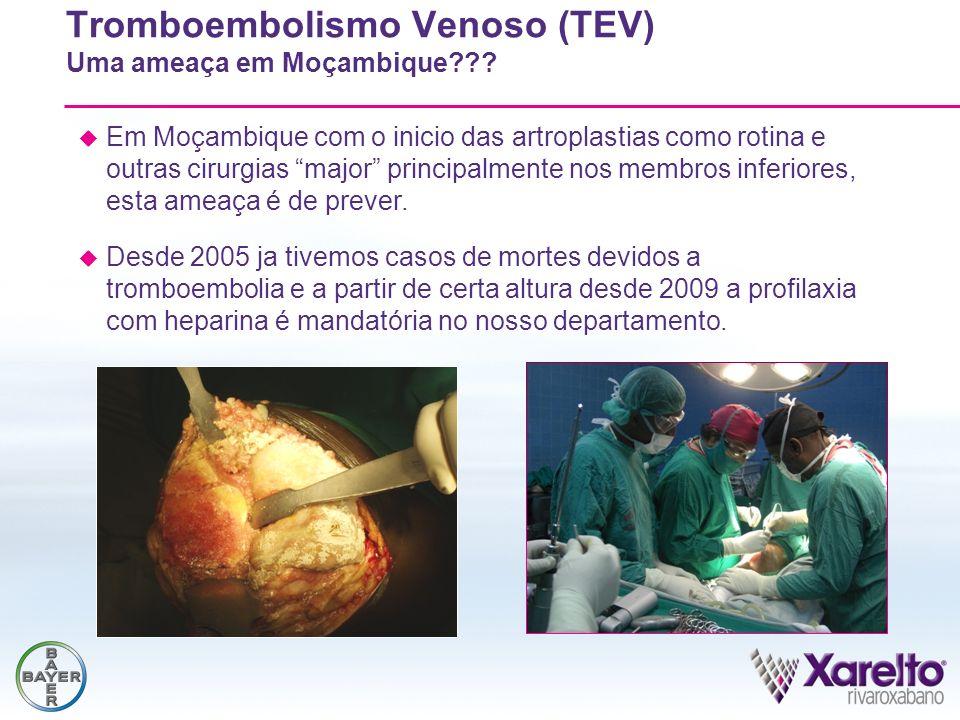 Tromboembolismo Venoso (TEV) Uma ameaça em Moçambique
