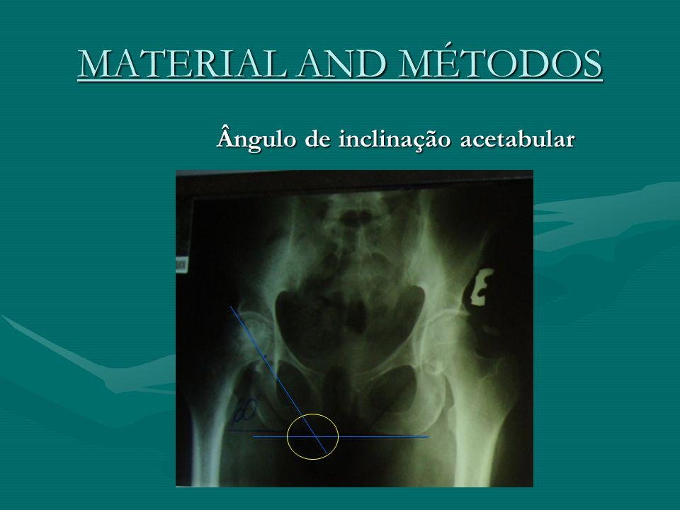 MATERIAL AND MÉTODOS Ângulo de inclinação acetabular