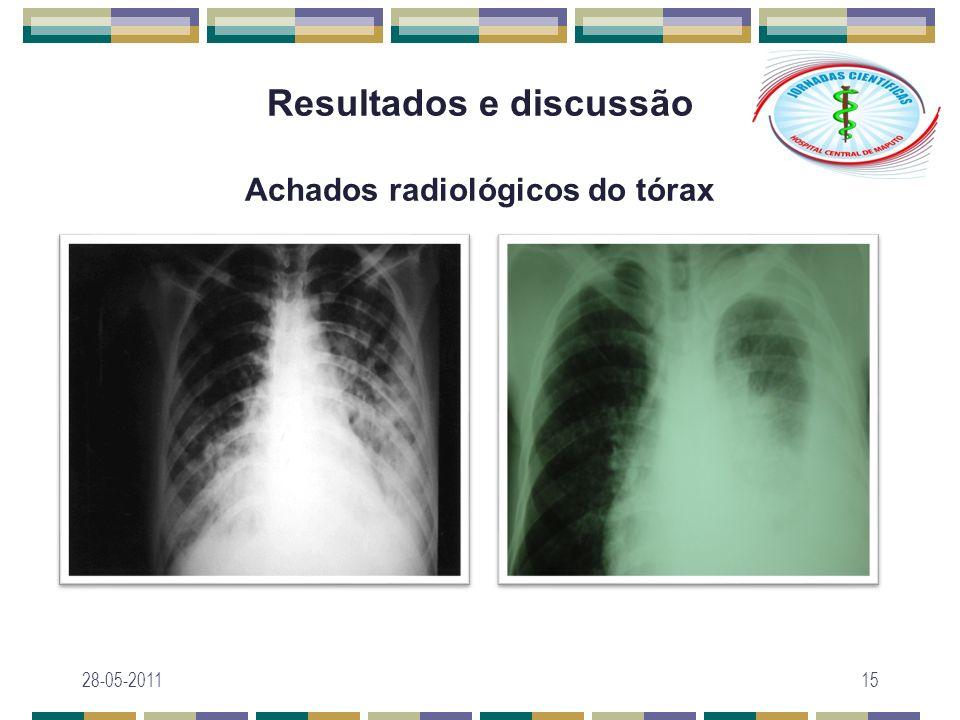 Resultados e discussão Achados radiológicos do tórax