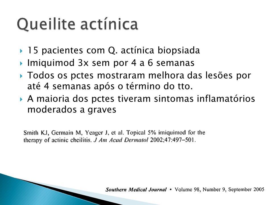 Queilite actínica 15 pacientes com Q. actínica biopsiada