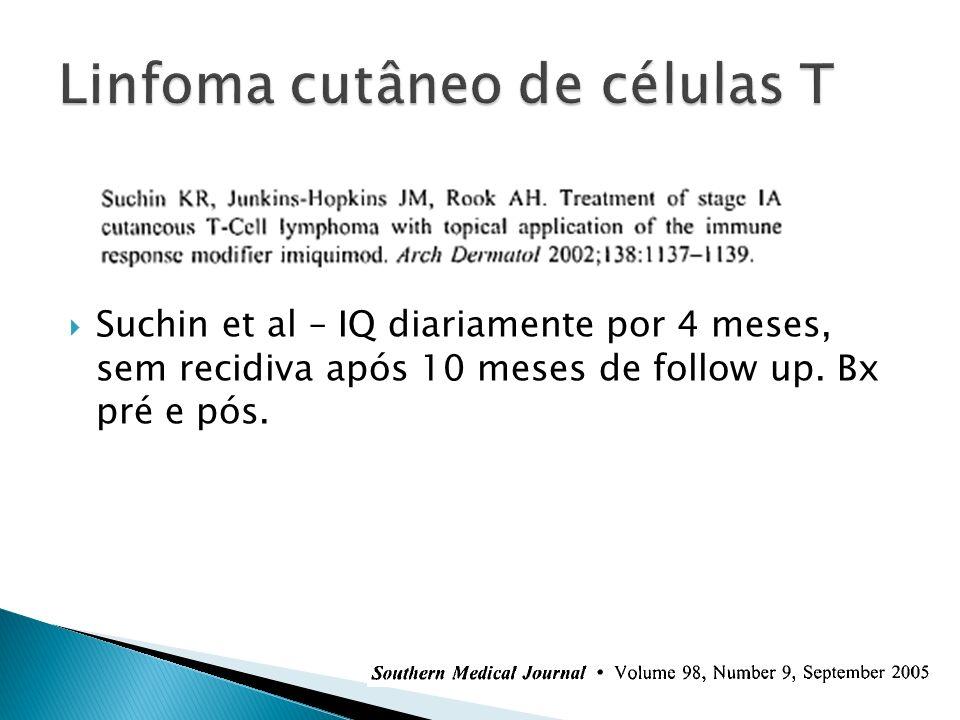 Linfoma cutâneo de células T