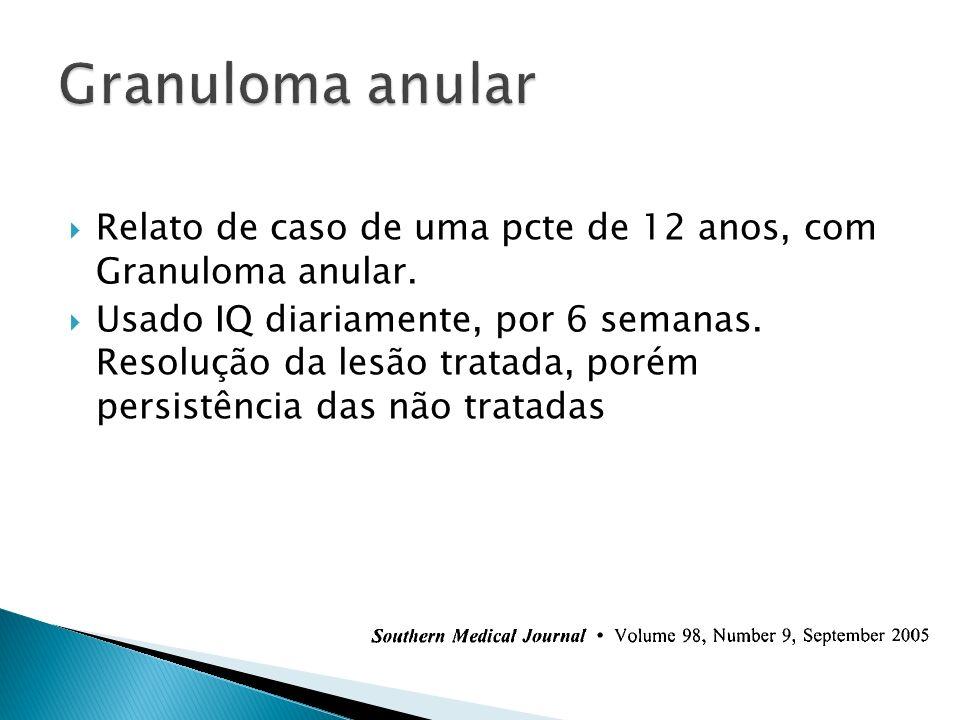 Granuloma anular Relato de caso de uma pcte de 12 anos, com Granuloma anular.