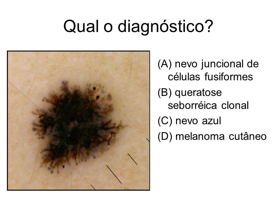 Qual o diagnóstico (A) nevo juncional de células fusiformes
