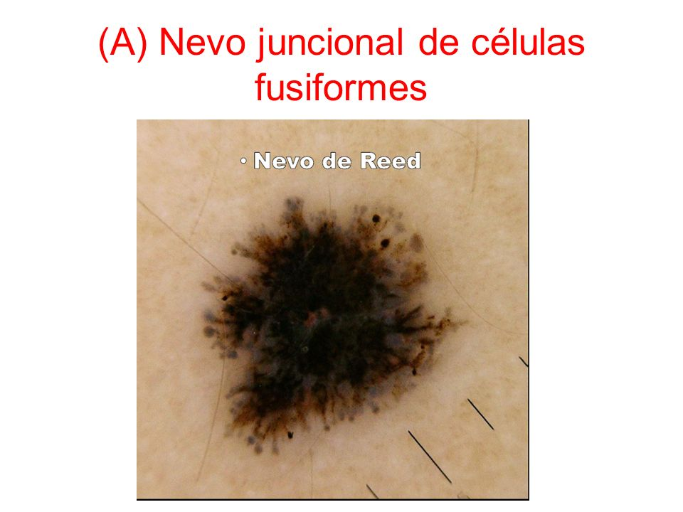 (A) Nevo juncional de células fusiformes