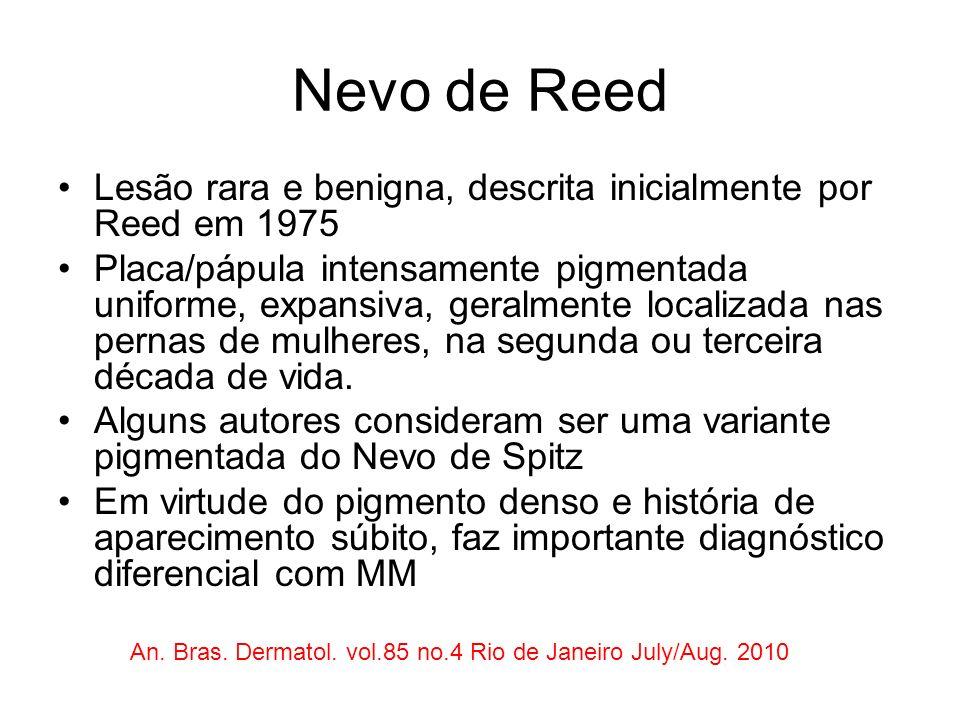 Nevo de Reed Lesão rara e benigna, descrita inicialmente por Reed em 1975.