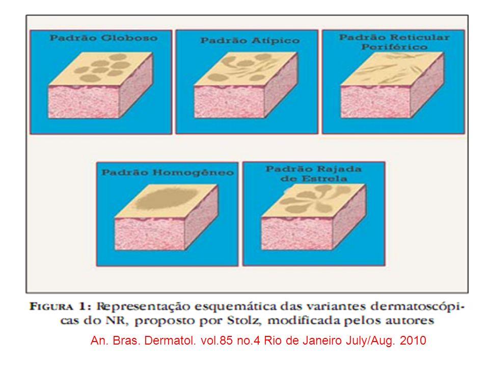 An. Bras. Dermatol. vol.85 no.4 Rio de Janeiro July/Aug. 2010