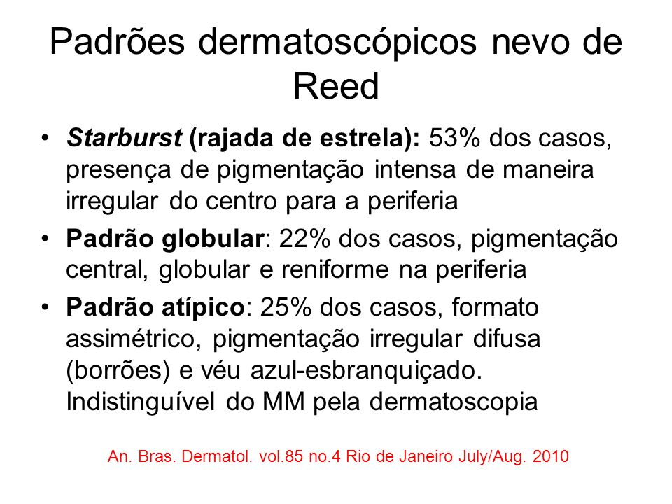 Padrões dermatoscópicos nevo de Reed