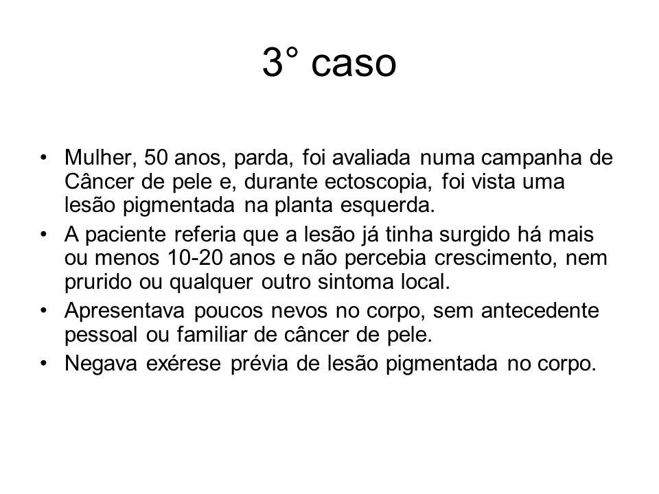 3° caso