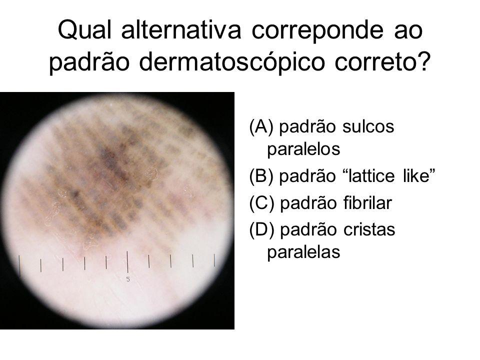 Qual alternativa correponde ao padrão dermatoscópico correto