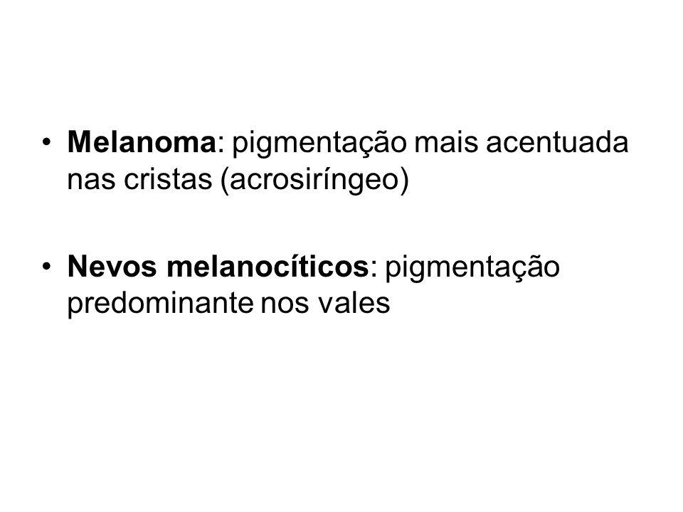 Melanoma: pigmentação mais acentuada nas cristas (acrosiríngeo)