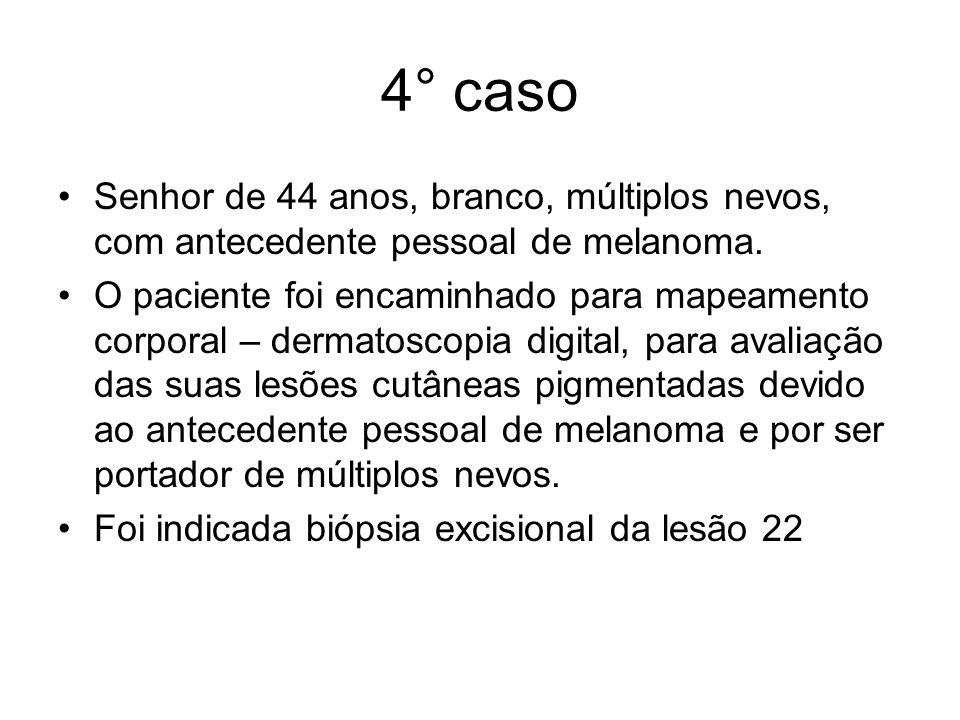 4° caso Senhor de 44 anos, branco, múltiplos nevos, com antecedente pessoal de melanoma.