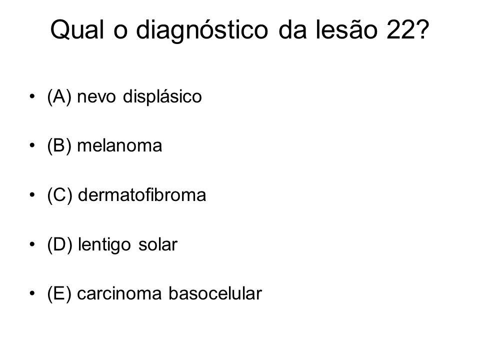 Qual o diagnóstico da lesão 22