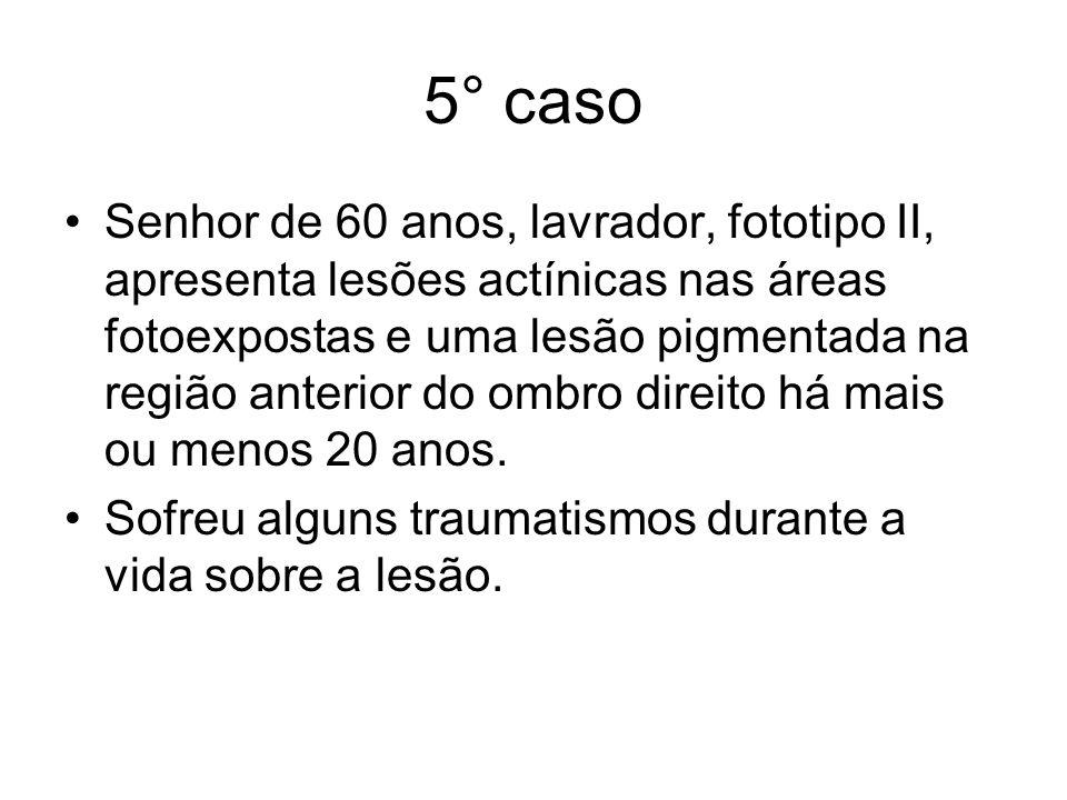 5° caso