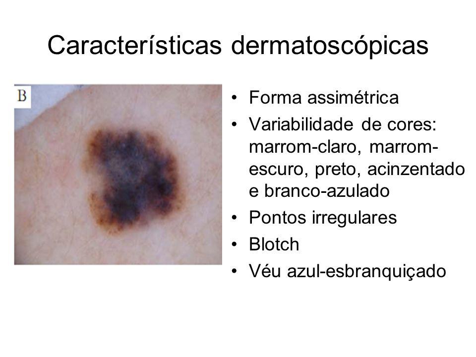 Características dermatoscópicas