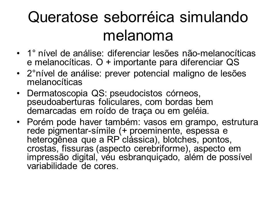 Queratose seborréica simulando melanoma