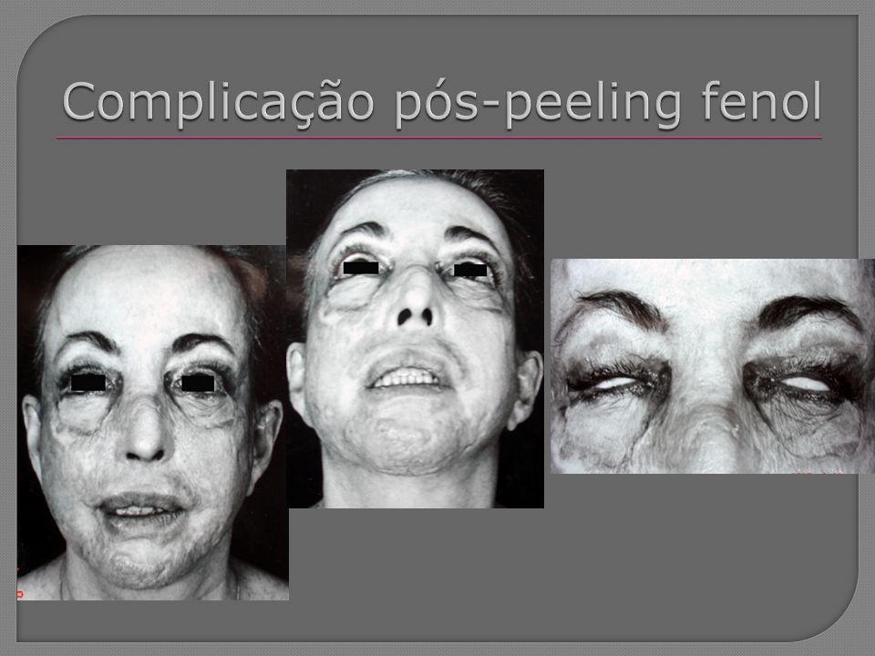 Complicação pós-peeling fenol
