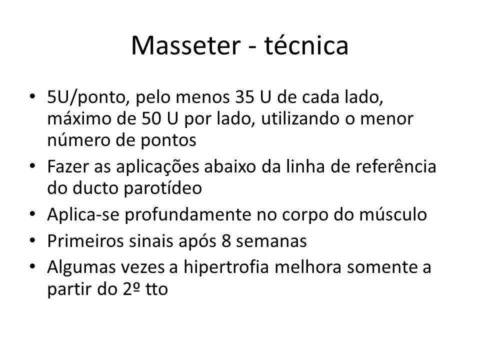 Masseter - técnica 5U/ponto, pelo menos 35 U de cada lado, máximo de 50 U por lado, utilizando o menor número de pontos.