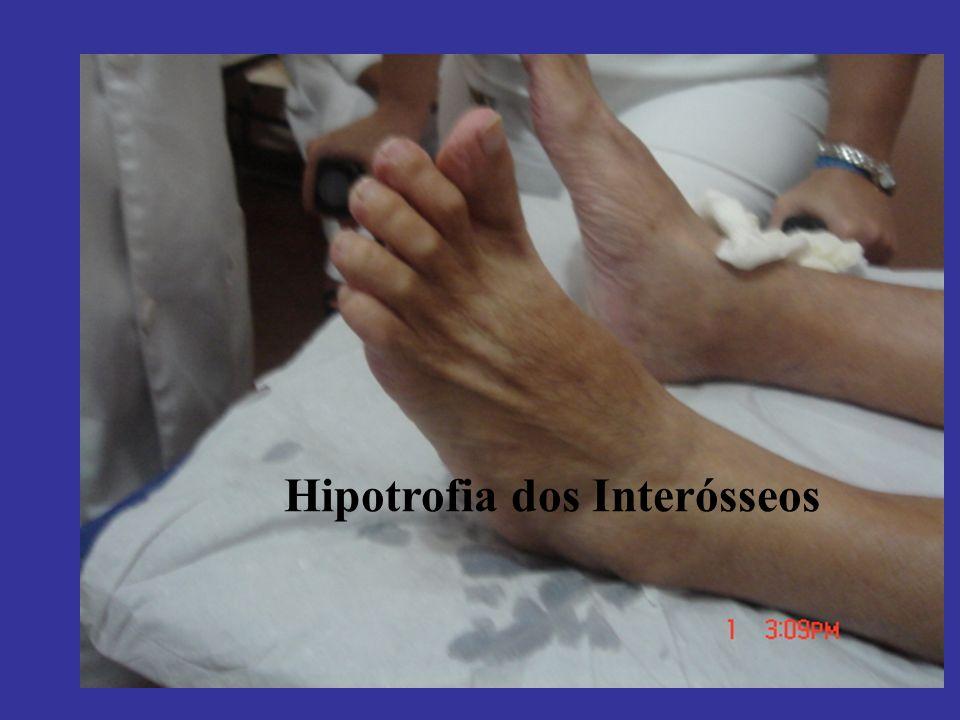 Hipotrofia dos Interósseos