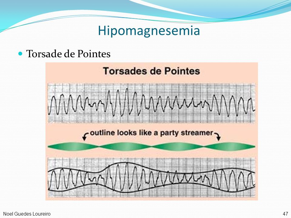 Hipomagnesemia Torsade de Pointes Noel Guedes Loureiro 47