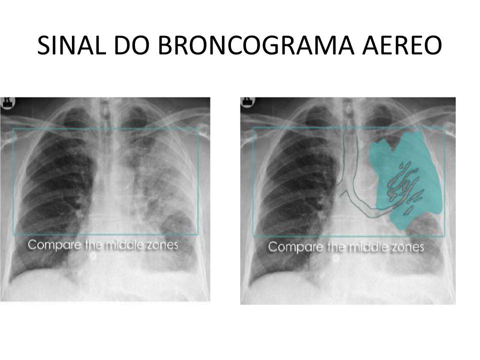 SINAL DO BRONCOGRAMA AEREO