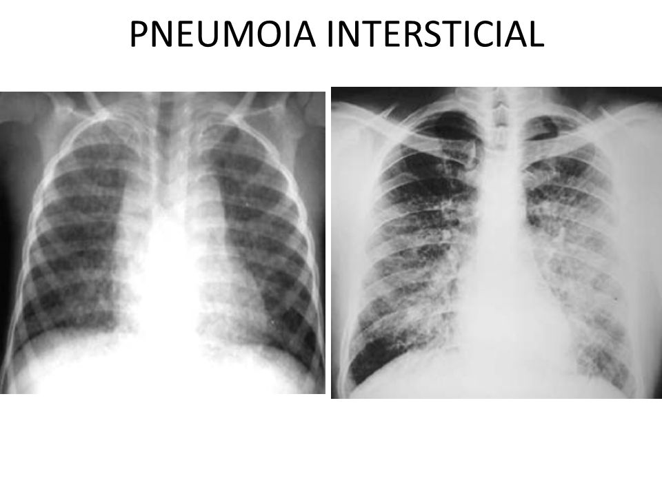 PNEUMOIA INTERSTICIAL