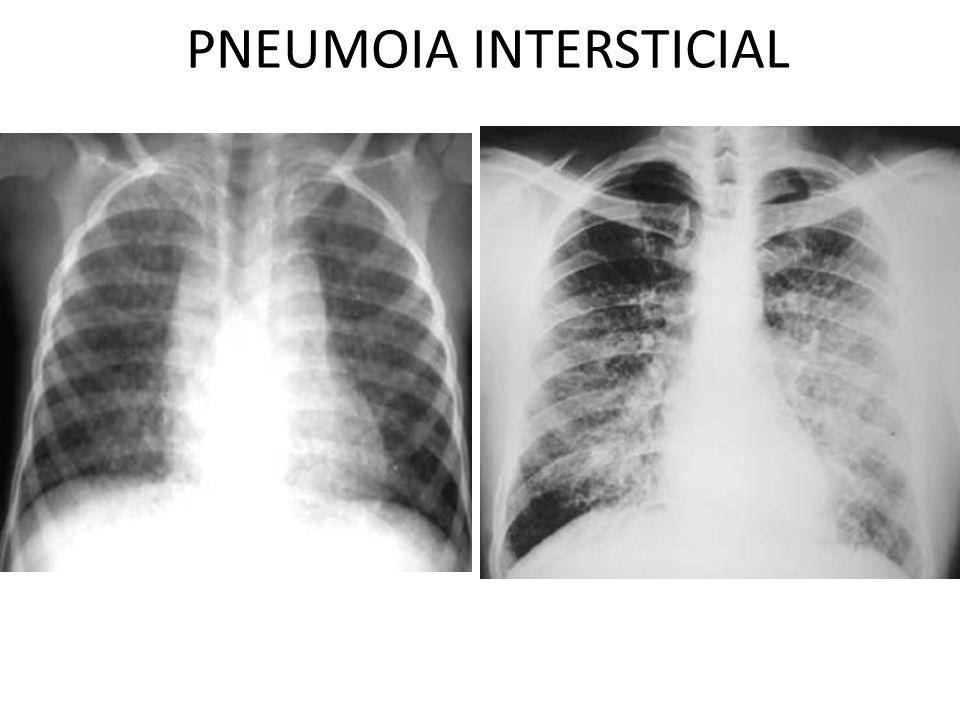 PNEUMOIA INTERSTICIAL